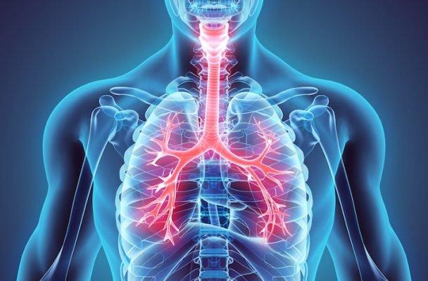 inflamacion del cartilago de las costillas